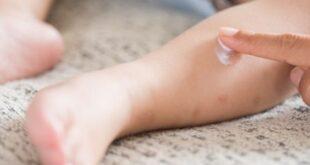 التخلص من الناموس بطرق طبيعية نهائيا في المنزل
